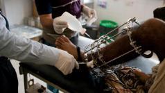 Ziekenhuis in Qataba. © MSF