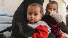 © Unicef / Masoud Hasen
